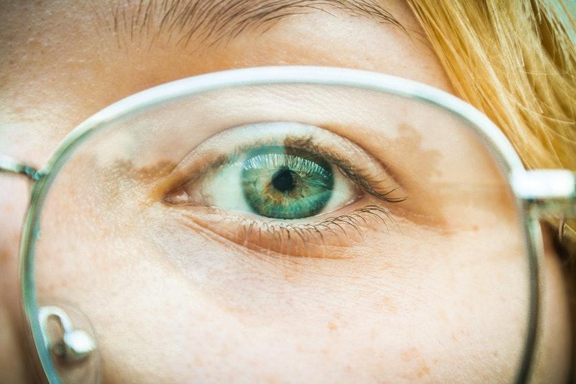 oko kobiety po operacji laserowej